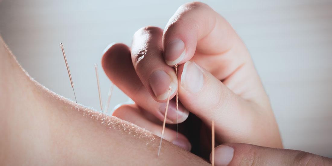 RAB godkendt behandlingsform - Akupunktur